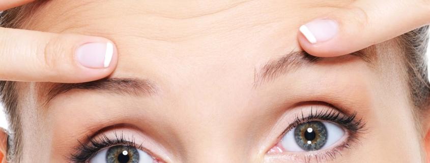 tipos de arrugas