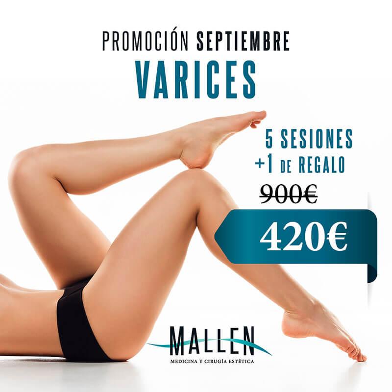 promo septiembre varices